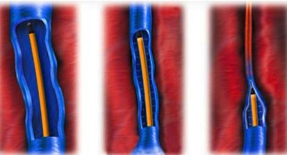 Дарсонваль при варикозном расширении вен